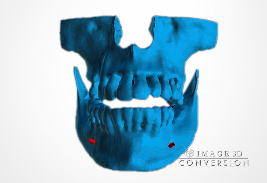 image3dconversion i3d CBCT to STL computer guided surgery DICOM to STL	Dental Implant Digital Dentistry Restorative dentistry